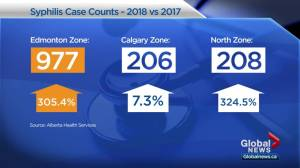 Alberta declares provincial outbreak of syphilis