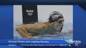 What is Cupping and how does it help athletes? (02:44)