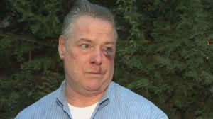 Lawyer left black and blue after California courthouse brawl