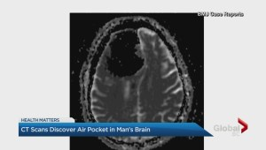 CT scan discovers air pocket in man's brain