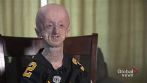 """Second oldest in the world with rare genetic disorder, Hamilton man """"keep's fighting"""""""