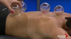Fire Cupping Demonstration