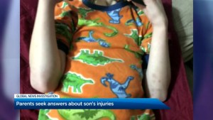 Lindsay, ON., family fights for answers after son with cerebral palsy claims teachers hurt him