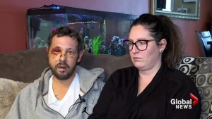 'I got to be strong and fight this': Lower Sackville crash survivor talks recovery
