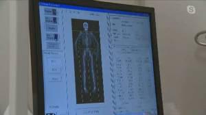 Healthy Living Report: Bone density (02:42)