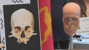 Forensic anthropologist helps with 3 cases of unidentified human remains