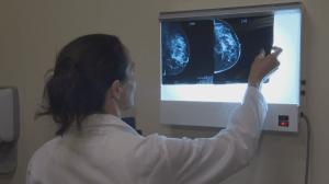 Ask an Expert: breast cancer awareness (04:00)
