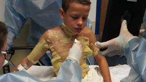12-year-old Michigan boy burned in 'fire challenge'