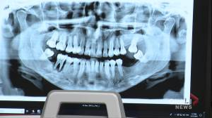 Concerns raised about 4.4 per increase Alberta dental fee guide, patients encouraged to shop around for services