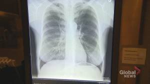 Quebec government makes tuberculosis screening more accessible
