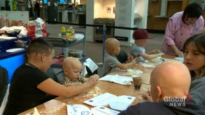 Calgary group works to raise awareness, help kids with alopecia