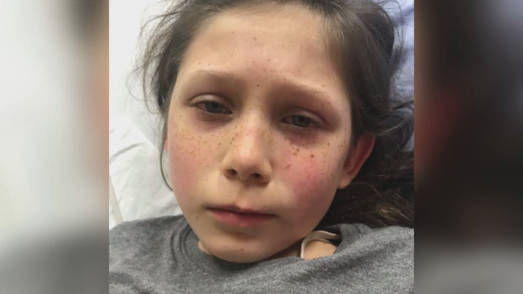 Click to play video: 'North Vancouver girl home after battling rare syndrome linked to COVID-19'