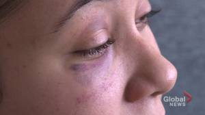 N.S. Black community responds to alleged police assault of young mother