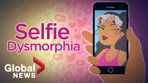 Selfie Dysmorphia: How social media filters are distorting beauty