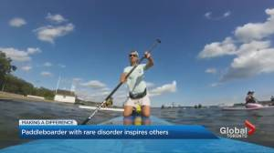 Toronto paddle boarder with Ramsay Hunt Syndrome shares story of getting back on the water