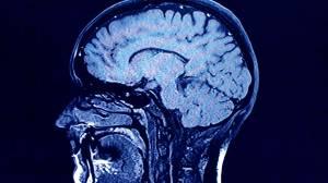 New Brunswick's mysterious, fatal brain disease (02:01)