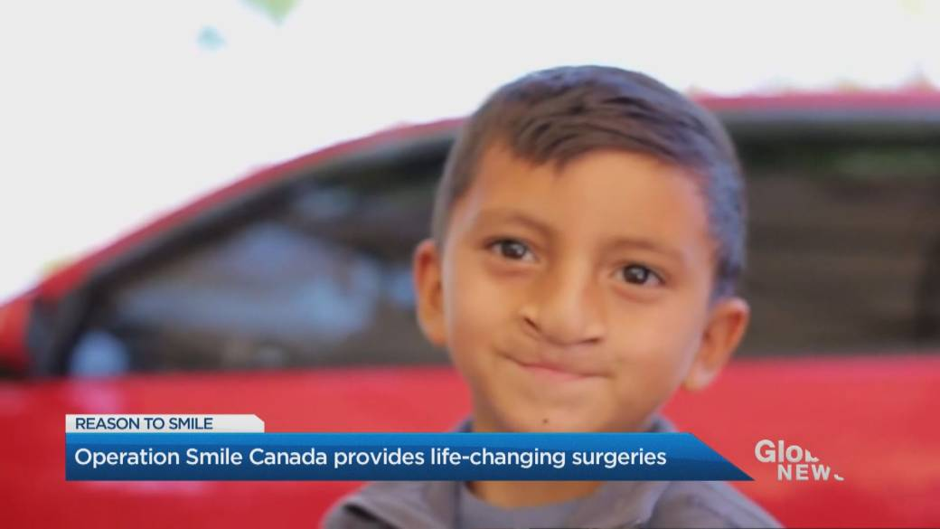 Click to play video 'Operation Smile Canada asking you to join coast-to-coast SMILE movement'