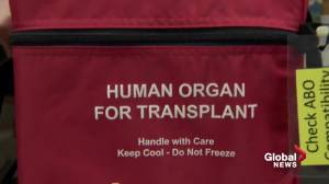 Health Matters: How COVID-19 is affecting transplants, surgeries in Edmonton (04:31)