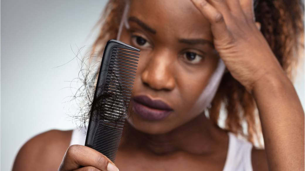 Traction alopecia: Everyday things you do that can cause hair loss