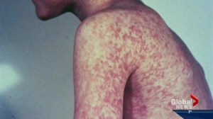 Another infant contracts measles in Edmonton