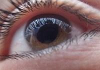 آب سیاه یا گلاکوما – دزد بیسروصدای بینایی (قسمت دوم)