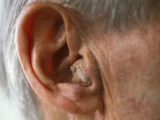 News Picture: As Hearing Fades With Age, Dementia Risk May Rise