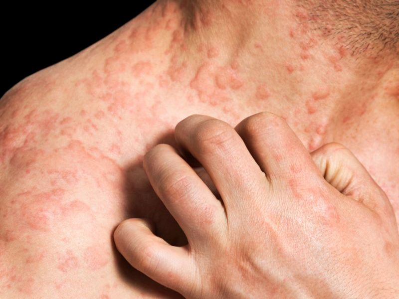 News Picture: Eczema Can Drive People to Thoughts of Suicide: Study