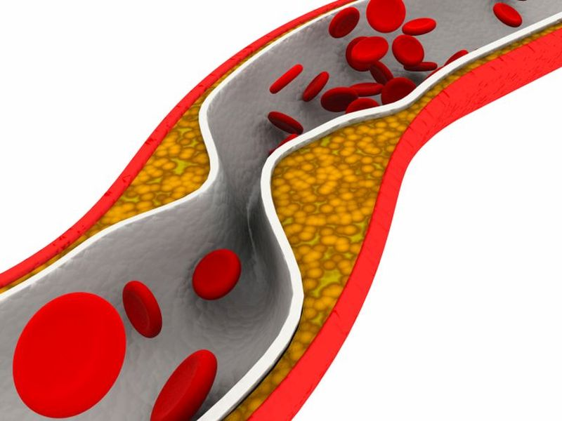 News Picture: Powerful Clot-Busting Drugs Not Useful After Leg Blockages: Study