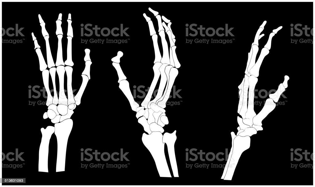 手の骨 のイラスト素材 513631093 | iStock