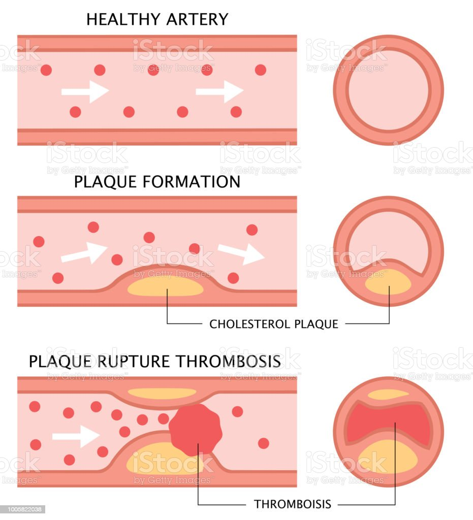 Atherosclerosis Stages Healthy Artery Plaque Formation And Thrombosis In Flat Style Isolated On White Background Health Care Concept Stock Vector ...