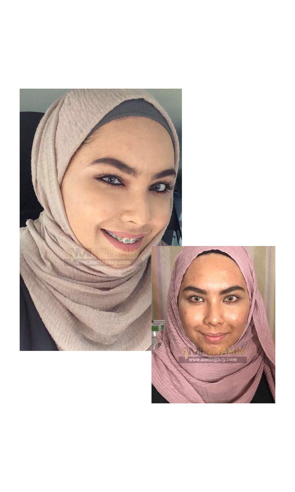 Pure Vitamin C Ami Legacy Health Beauty Skin Bath Body On Carousell