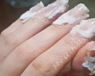 Han tar bakpulver på sina naglar – resultatet kommer chocka dig!
