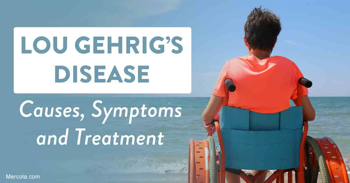 Lou Gehrig S Disease Causes Symptoms And Treatment
