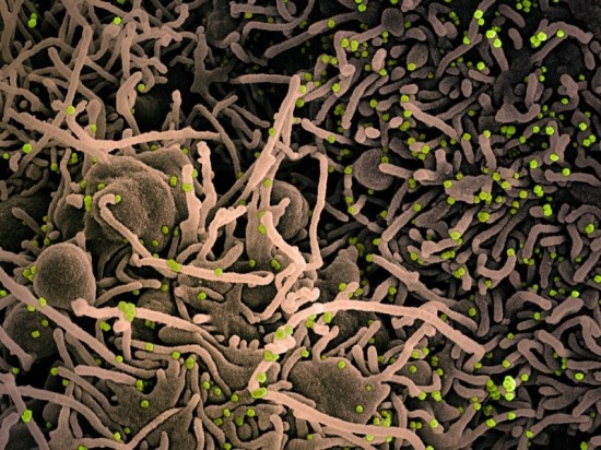 Cell infected with Covid-19 coronavirus particles, SEM.
