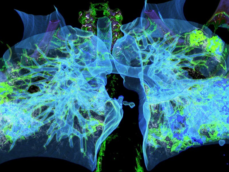 Coloured computed tomography (CT) scan of human lungs.