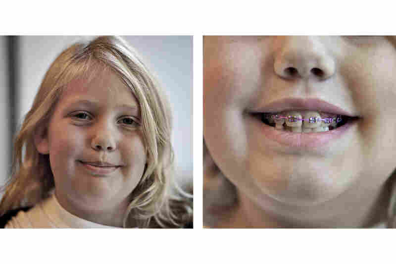Braces For Young Kids Might Not Always Be Best NPR