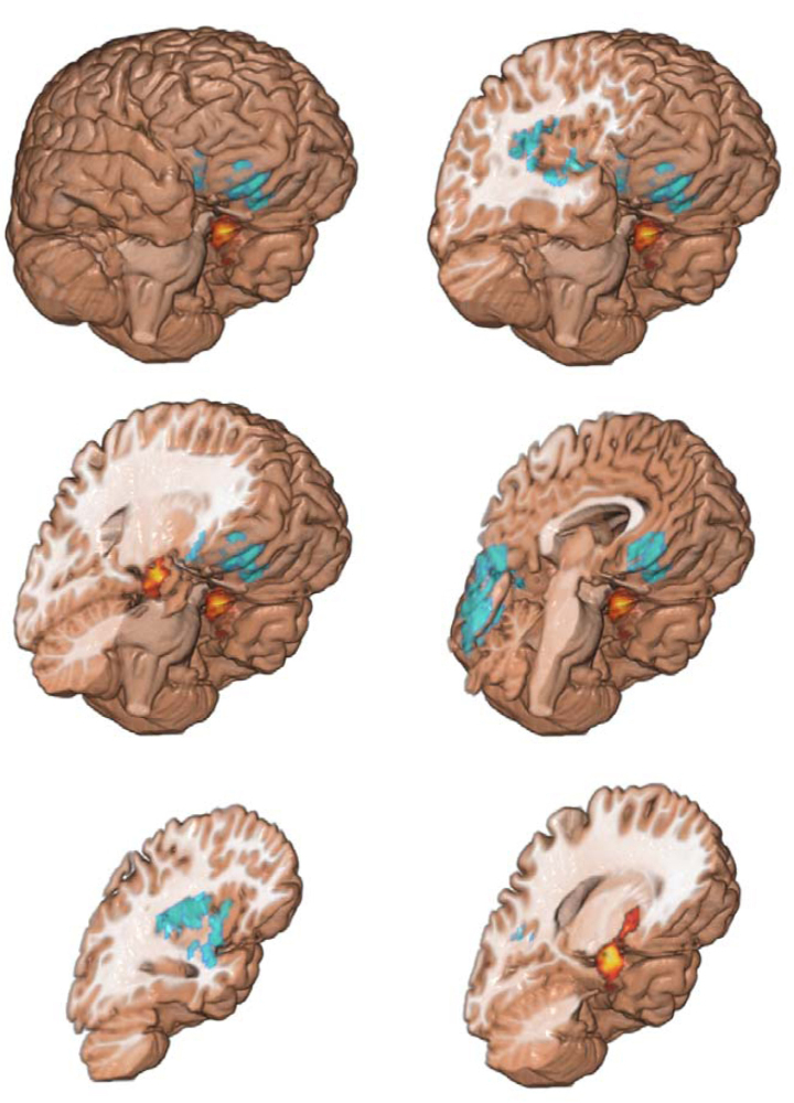 The red areas show gray matter that is abnormally increased in drug users. Blue shows gray matter that is abnormally decreased in drug users. Yellow shows white matter tracts, called fractional anisotropy or FA. FA is significantly reduced in both the drug users and in their siblings, which suggests that the white matter tracts work less efficiently.