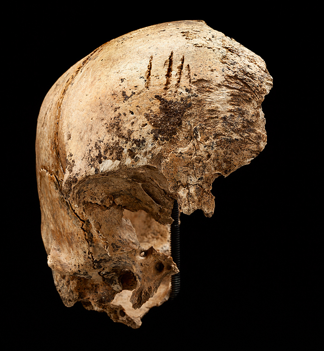 """The four cuts at the top of this skull """"are clear chops to the forehead,"""" says Smithsonian forensic anthropologist Douglas Owsley. Based on forensic evidence, researchers think the blows were made after the person died."""