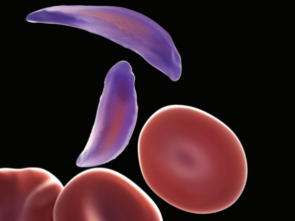 Sickle Cell Anemia Is On The Rise Worldwide : Shots ...