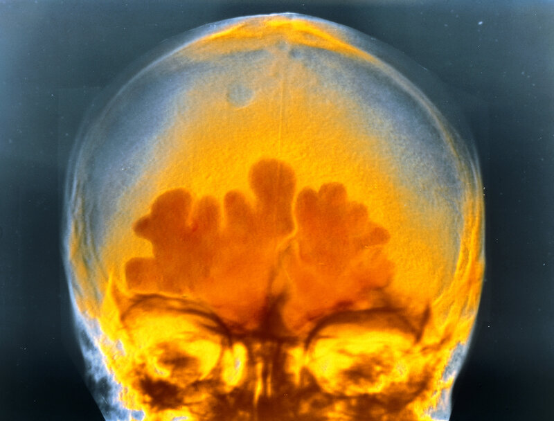 This is what the inflammation of sinus infection looks like in a false-color X-ray. It hurts even more in real life.