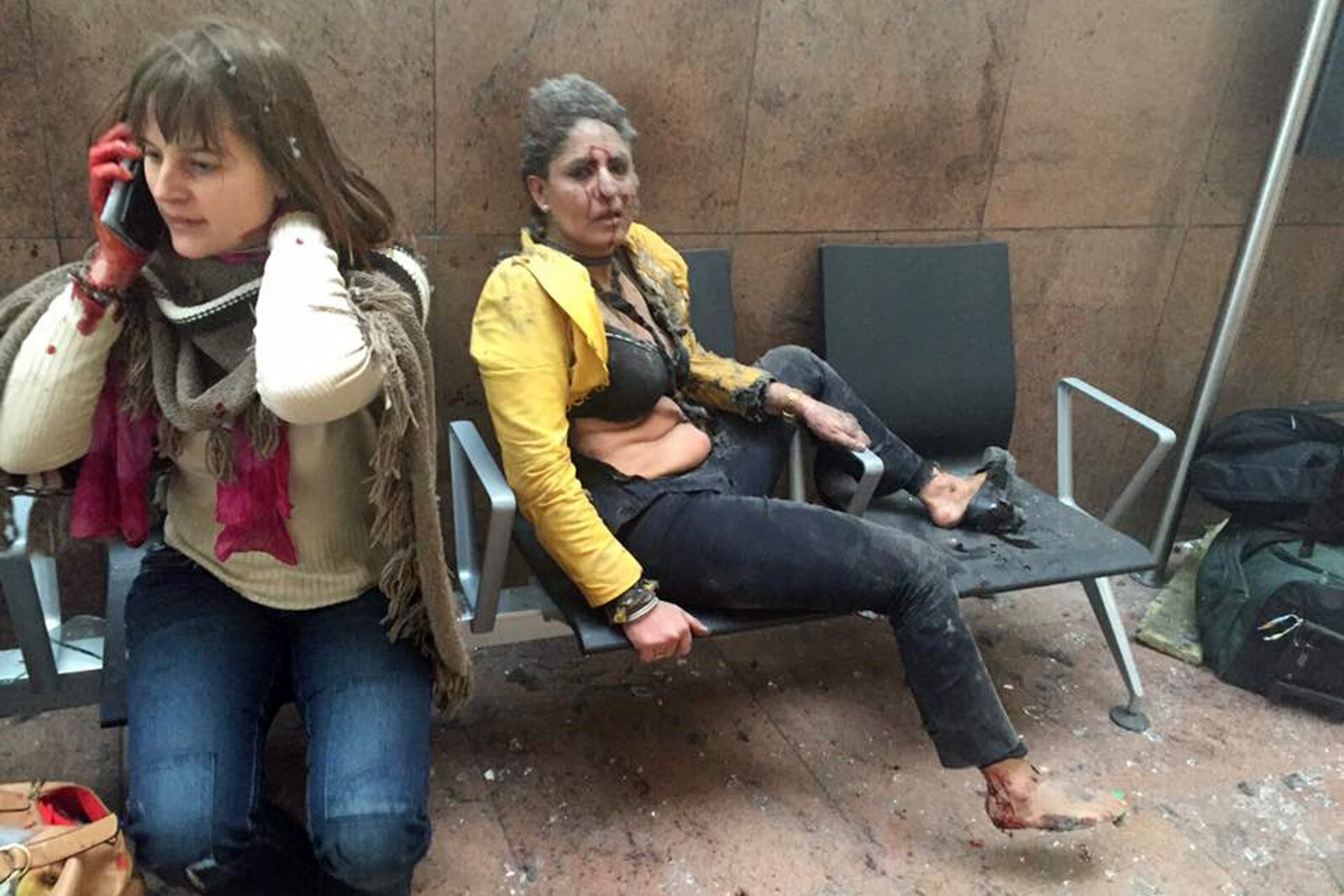 Two women wounded in the Brussels airport in Belgium after explosions there Tuesday. Belgian media say 11 people died in the airport attack.
