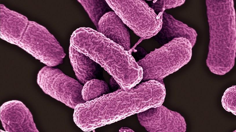 https://i1.wp.com/media.npr.org/assets/img/2016/05/26/e-coli_wide-fef9db34381b7ff035a2ca3212d3fc317487d0e0.jpg?resize=814%2C457&ssl=1