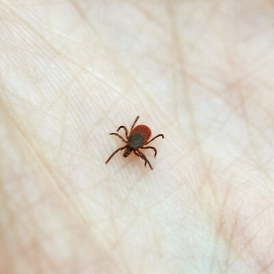 Did You Get Bit By A Lyme-Infested Tick? Here's What To Do