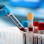 Covid-19: Armenia infections grew by 462 in the past day