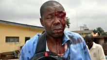 Battered Journalist