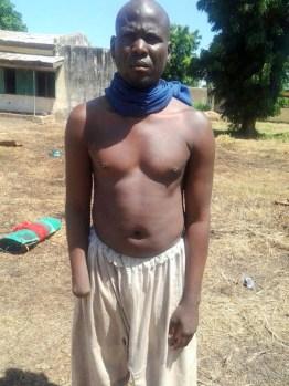 Bukar Bulama, the man amputated by Boko Haram on suspicion of theft.