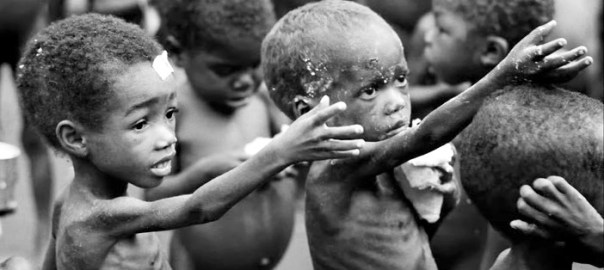 Malnourished children Photo: www.arabiangazette.com