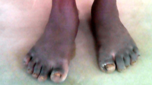 The leprosy infested toes of Master Peter