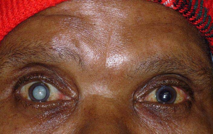 A Cataract patient. [Photo credit: Daily Times Nigeria]