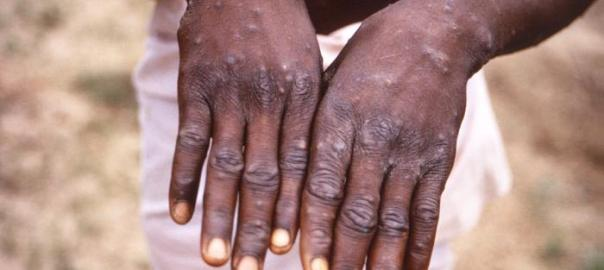 Monkeypox [Photo: Outbreak News Today]